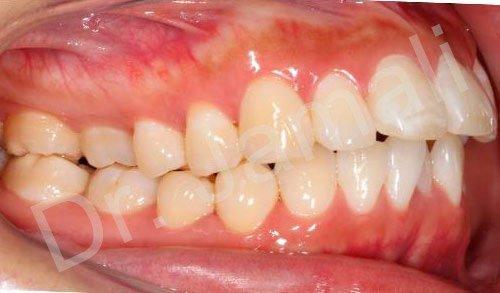 orthodontics treatments - patient 4 - before 6