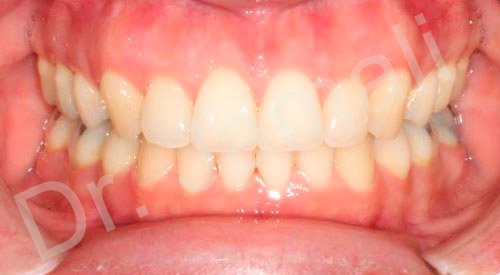 orthodontics treatments - patient 5 - after 7