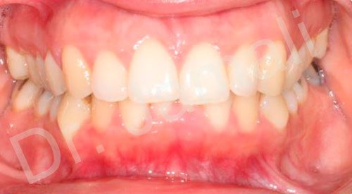 orthodontics treatments - patient 5 - before 7