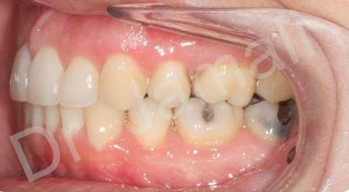 orthodontics treatments - patient 5 - after 8