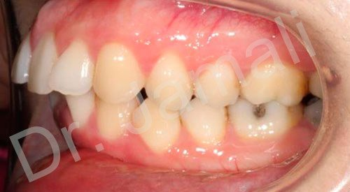 orthodontics treatments - patient 5 - before 8