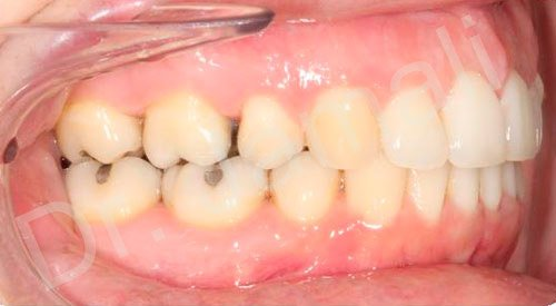 orthodontics treatments - patient 5 - after 6