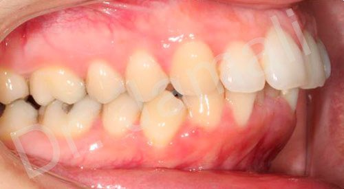 orthodontics treatments - patient 5 - before 6