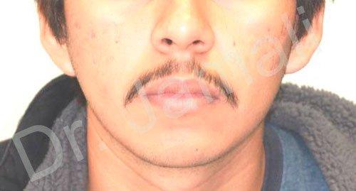 orthodontics treatments - patient 6 - before 2