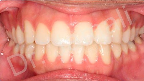 orthodontics treatments - patient 6 - after 6