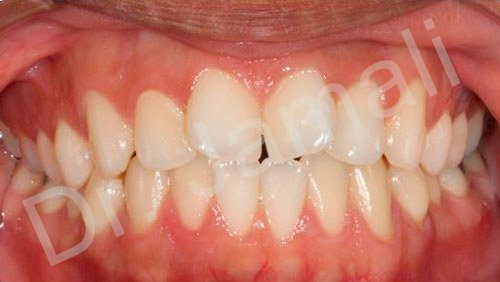 orthodontics treatments - patient 6 - before 6