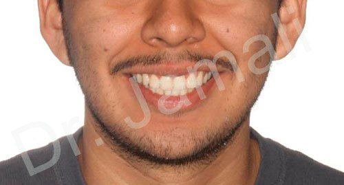 orthodontics treatments - patient 6 - after 3