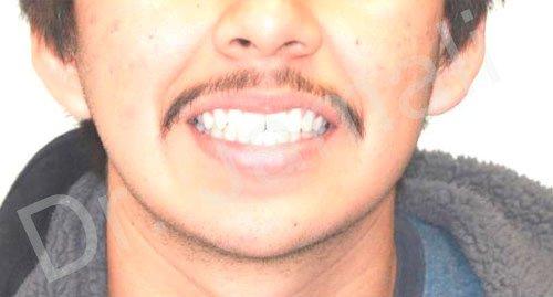 orthodontics treatments - patient 6 - before 3