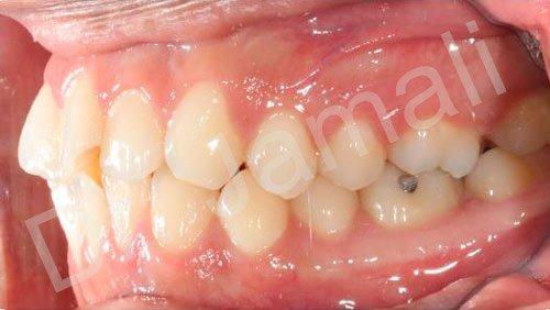 orthodontics treatments - patient 6 - before 8