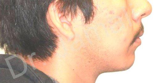 orthodontics treatments - patient 6 - before 1