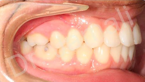 orthodontics treatments - patient 6 - after 7