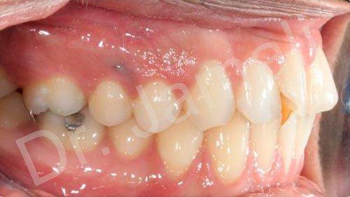 orthodontics treatments - patient 6 - before 7
