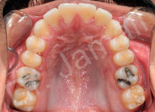 orthodontics treatments - patient 6 - after 4