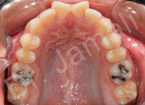 orthodontics treatments - patient 6 - before 4