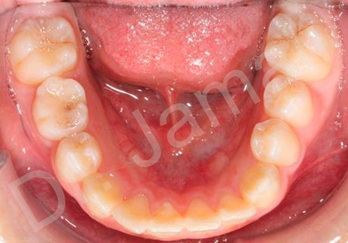 orthodontics treatments - patient 7 - before 7