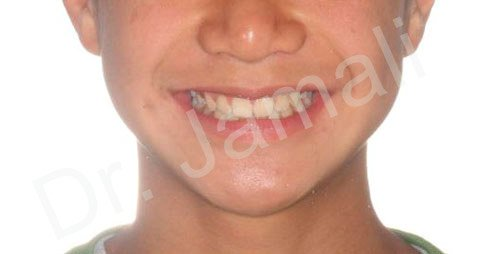 orthodontics treatments - patient 7 - after 3