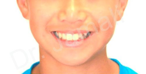 orthodontics treatments - patient 7 - before 3