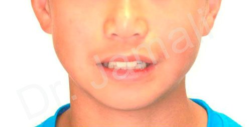 orthodontics treatments - patient 7 - before 2