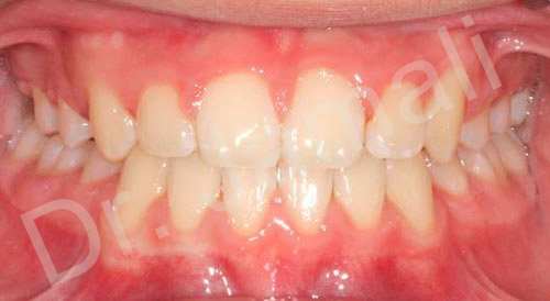 orthodontics treatments - patient 7 - after 4