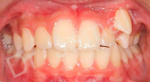 orthodontics treatments - patient 7 - before 4