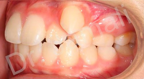orthodontics treatments - patient 7 - before 5