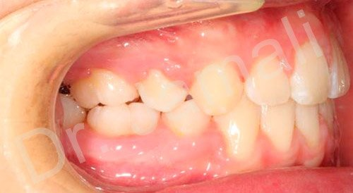 orthodontics treatments - patient 7 - after 6