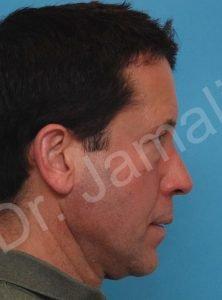 Sleep Apnea Photo - Patient 2 - Before 1